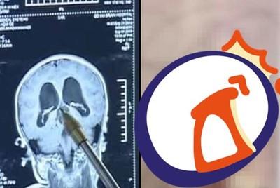 5歲童狂手抖…醫愣了:腦內長出頭髮+牙齒