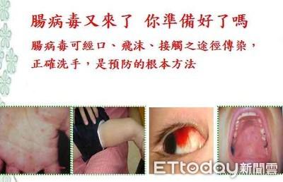 台南出現第4例腸病毒71型感染併發重症