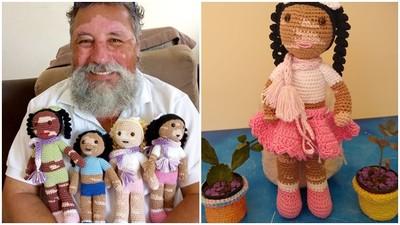 娃娃臉上白一塊!巴西老爹手織「白癜風娃娃」 鼓勵病童接受自己