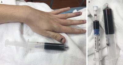 25歲牙痛女變「藍血人」 止痛藥惹禍