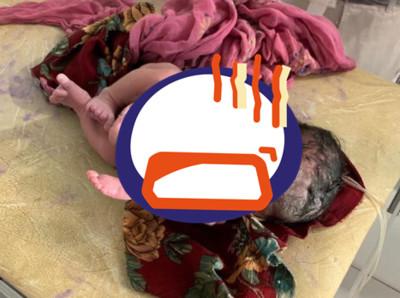 醫喜接生龍鳳胎 見小女嬰被半截嬰屍包裹