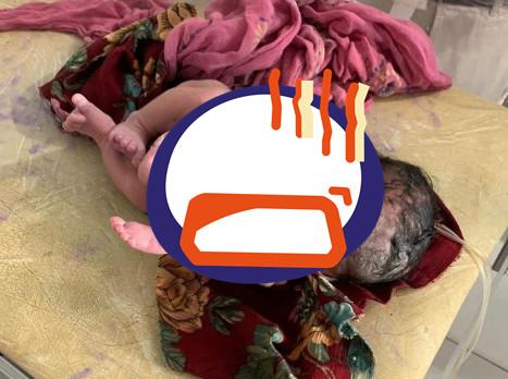 ▲印度小女嬰出生竟被原本該有的第三胎殘肢包住。(圖/翻攝自punjabkesari.in)