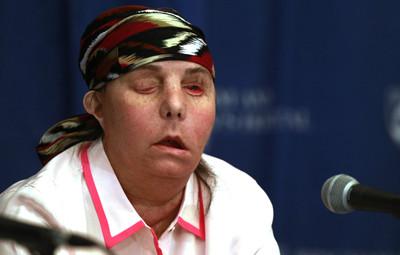 她被家暴夫潑強鹼 移植新臉卻壞死