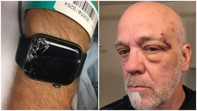 手錶救命!單車男摔跤暈倒山路邊 科技錶「發現不對勁」呼叫救護車