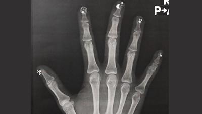骨骼異於常人?人妻手部X光照出一堆「星星月亮」 網笑準備魔法決鬥