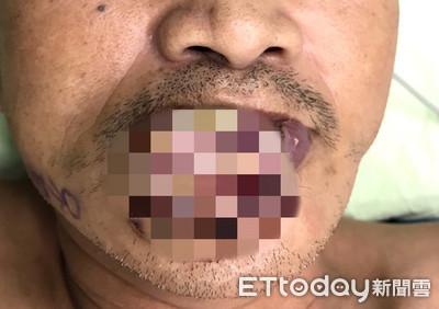 潰爛流湯!他下唇腫「藍莓起司」 醫驚:第四期