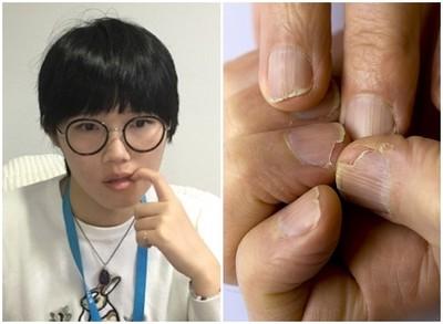 咬指甲會致命!她遭「恐怖細菌」攻擊全身