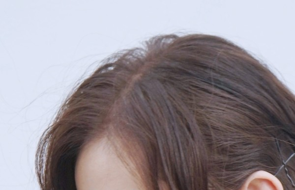 ▲劉詩詩美照被鷹眼網友發現頭皮屑。(圖/翻攝自微博/詩詩的小板報)