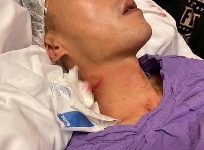 19歲學生割傷港警頸部「涉意圖謀殺」