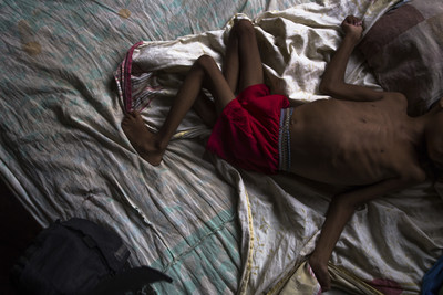 全球2億孩童營養失調  隱性飢餓成最大隱憂