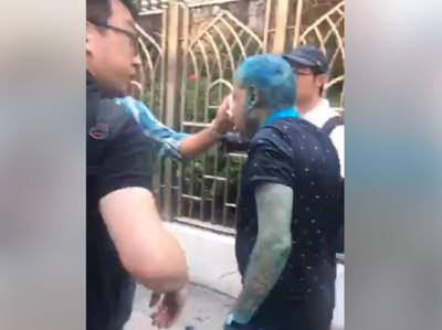 印度協會前主席被顏料水射眼致失明25min