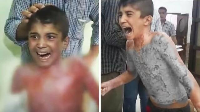 皮膚一片片剝落!敘利亞五歲童哭喊「拜託停戰」送到醫院傷口還在冒煙