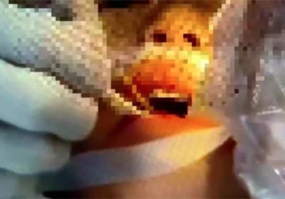 2歲幼童吃熱狗跌倒!8cm竹籤直插腦幹