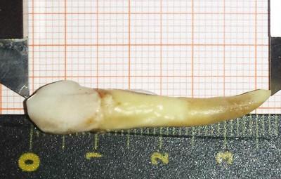 德牙醫拔3.72公分牙齒 破金氏紀錄