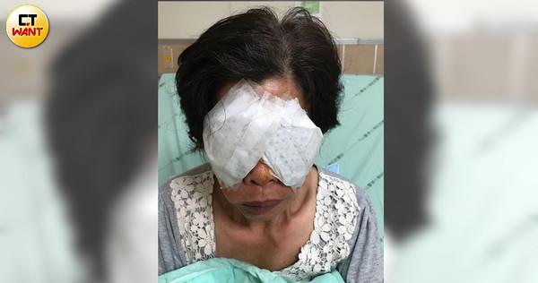 謝婆婆的雙眼被人毆打戳瞎,因延誤就醫差點死掉。(圖/讀者提供)