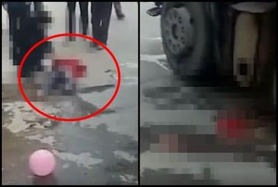 女孩追氣球遭貨車輾壓 右腿截肢了…