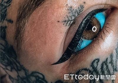 「青眼白龍」刺藍雙眼失明3週 像玻璃狂刮