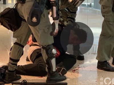 香港商場內混亂 便衣警、被捕黑衣人「滿頭是血」