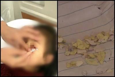7歲女童遭男同學「紙片塞眼」 校長竟稱沒惡意