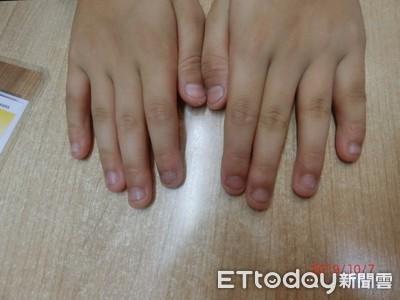 10歲童啃指甲變形 醫曝:跟虎媽有關