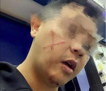 港警值勤突遭陌生男「交叉割臉」