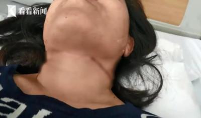 女遭風箏線割傷頸部 縫了30多針