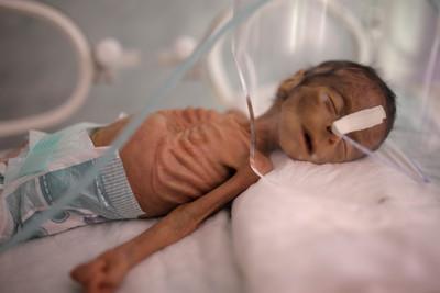 葉門內戰「骷髏男嬰」心酸畫面曝光