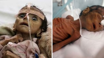 嬰兒都「餓到肋骨凹陷」!葉門內戰打不停飢荒爆發 捱餓小孩救不完