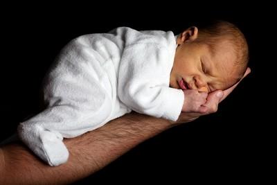 俄女嬰皮膚8成都是胎記 牧師拒幫受洗