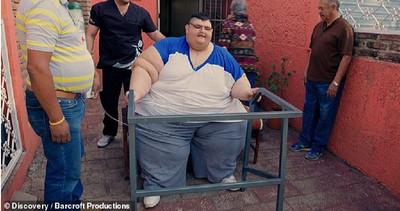 世界最胖男子靠「縮胃、節食」甩330kg