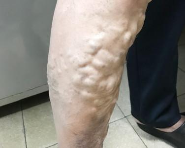 老師久站「腿爆青筋」 新式微創手術解決困擾