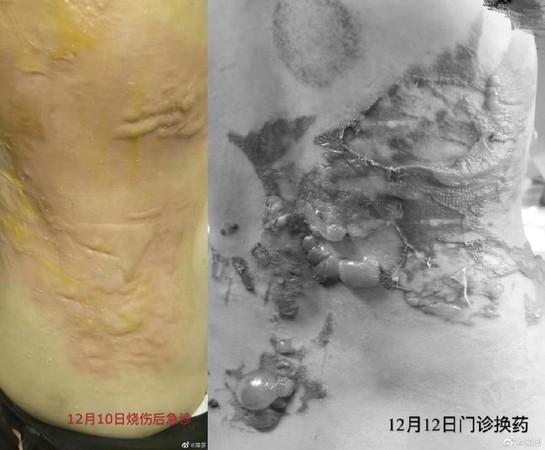 ▲鄧莎背部被燒傷。(圖/翻攝自微博)