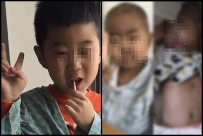 爸捐肝+骨髓都治不好…5歲兒落淚:別救我了