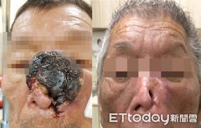 癌瘤誤當青春痘!他半邊鼻遭「巨型松露」滲血啃光...眼恐失明