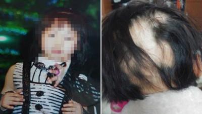 韓國妹莫名掉髮「後腦變禿饅頭」 加濕機殺菌劑奪千人命:已用了30年!