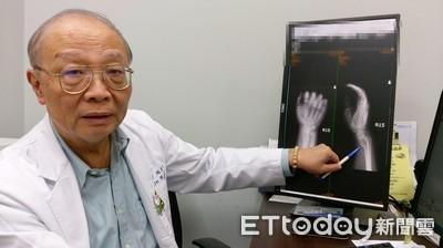 國二生摔倒雙手粉碎骨折 醫曝關鍵:體重95kg