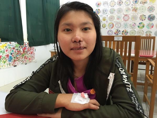 送愛到緬甸!19歲少女因唇裂生活在欺淩陰影臺灣慈善團體手修翻倒命運