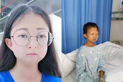 21公斤吳花燕醫院過世…弟弟回應了