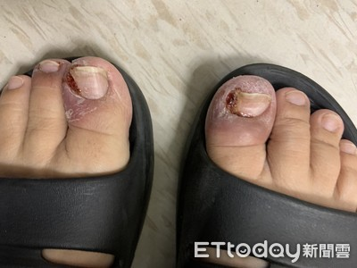 指甲裂開長紅肉芽!她癌復發「手腳爆甲溝炎」6行為別放縱