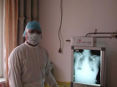 專家感染武漢肺炎:或因未戴防護鏡