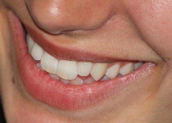 牙齒健康不僅牙醫會叮嚀!腦神經內科醫:牙周病也恐釀失智 | ETtoda