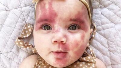 嘲笑「被平底鍋燙過的臉」!女嬰胎記遭酸民攻擊 母氣哭:她不到兩歲耶