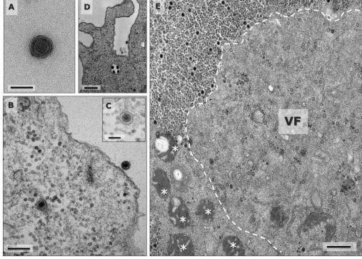 巴西發現「神祕新病毒」 90%基因配對不到資料庫…科學家驚:是全新變異種