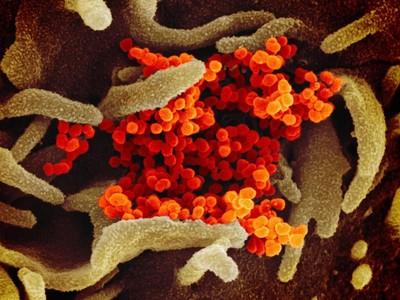新冠病毒源自大陸生物實驗室?權威學家回應了
