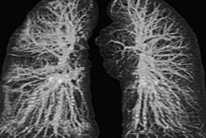 ▲▼ 肺部影像。 (图/翻摄arynews.tv)