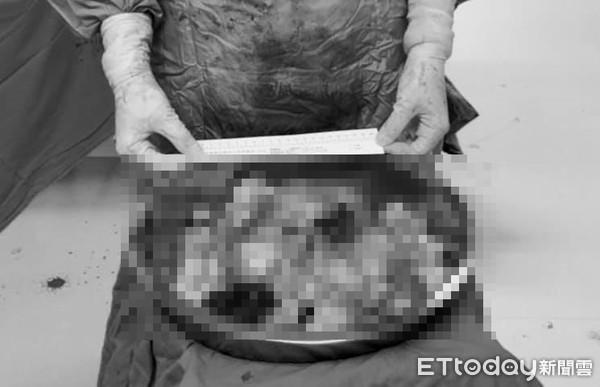 獨/女水龍頭式血崩!醫挖80顆粉肉球「塞爆臉盆」…手術11hrs崩潰:手快廢了