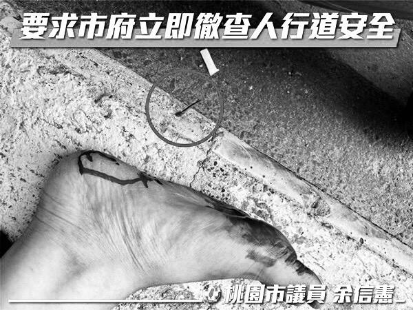 人行道「有釘子」男遭刺腳血流如注 桃園議員要求市府徹查