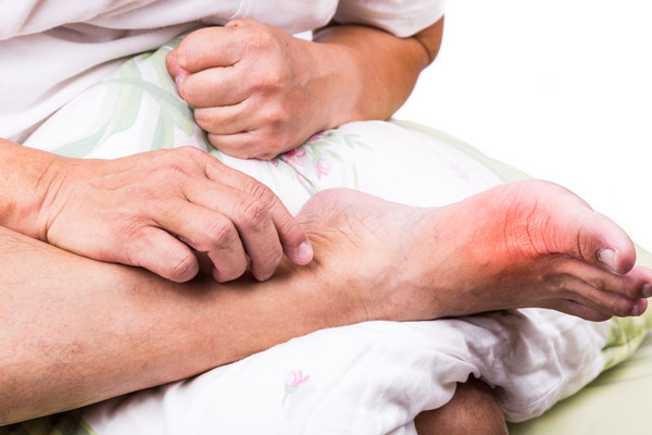 放任痛風不管反覆發作 這種疾病會跟著來 | ETtoday探索 | ET