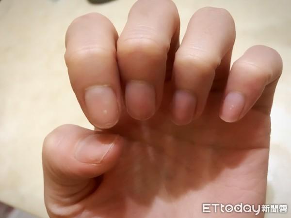 指甲反映健康狀態!醫曝「指尖上5大改變」要小心…出現黑色線條恐致死 |