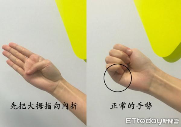 靠「手指頭」秒測主動脈剝離?心臟外科醫曝真相:別傻了
